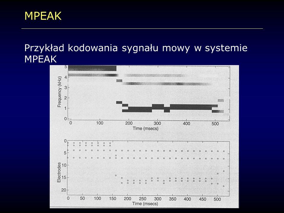 MPEAK Przykład kodowania sygnału mowy w systemie MPEAK