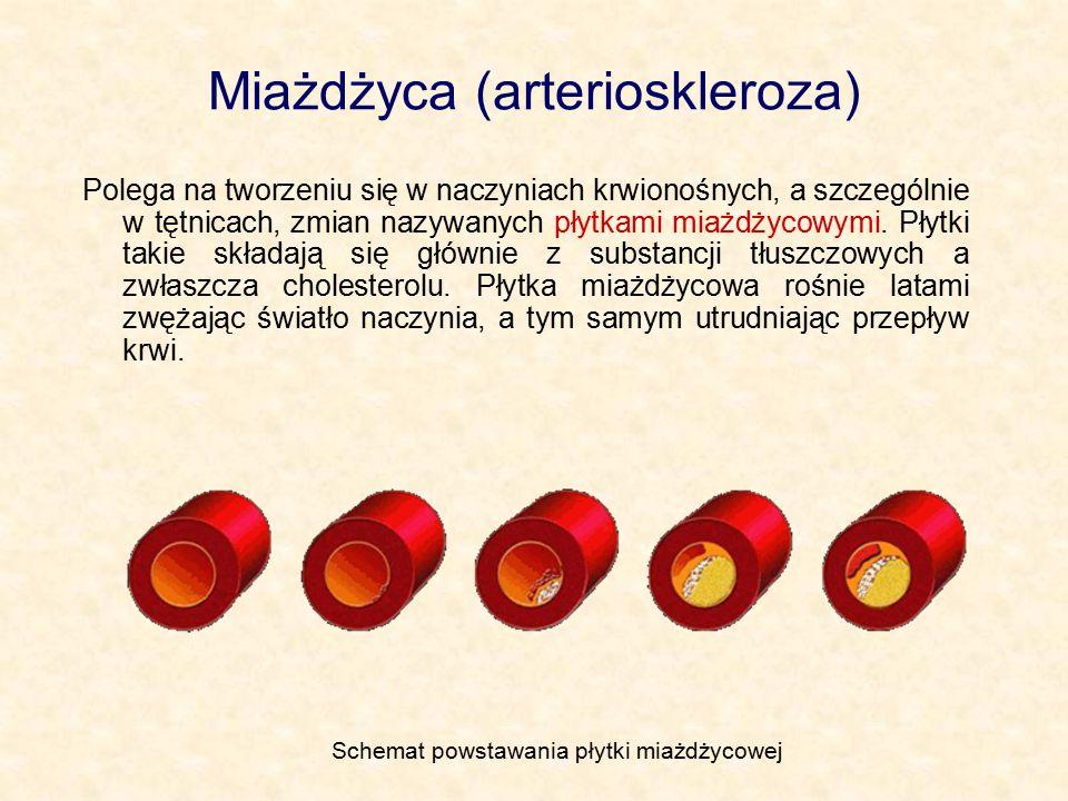 Miażdżyca (arterioskleroza)