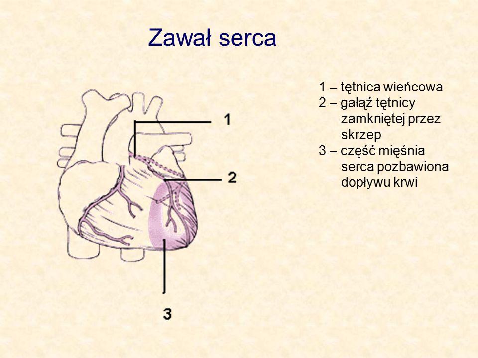 Zawał serca 1 – tętnica wieńcowa 2 – gałąź tętnicy zamkniętej przez