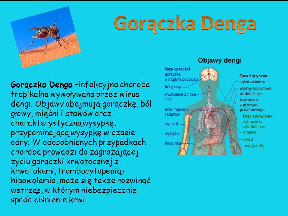 Gorączka Denga