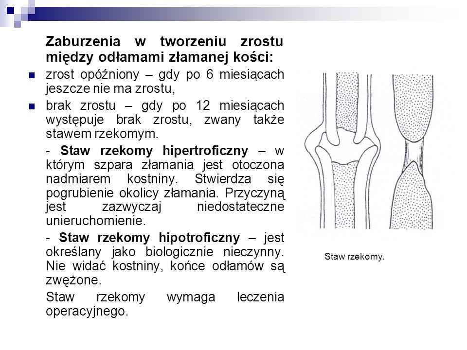 Zaburzenia w tworzeniu zrostu między odłamami złamanej kości: