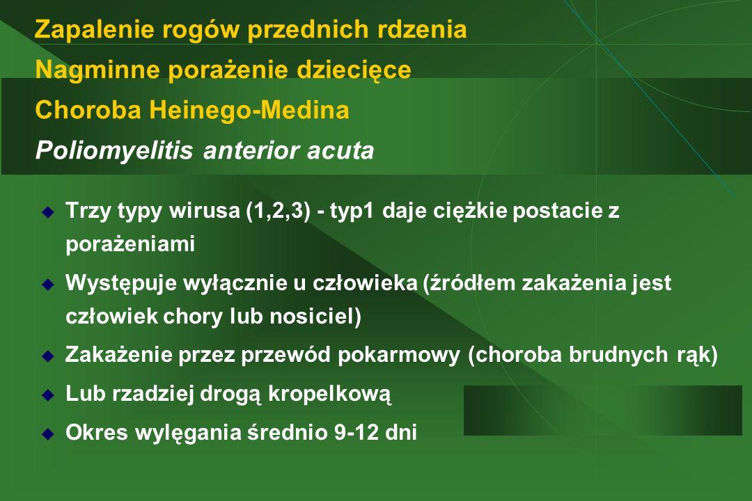 Zapalenie rogów przednich rdzenia Nagminne porażenie dziecięce Choroba Heinego-Medina Poliomyelitis anterior acuta
