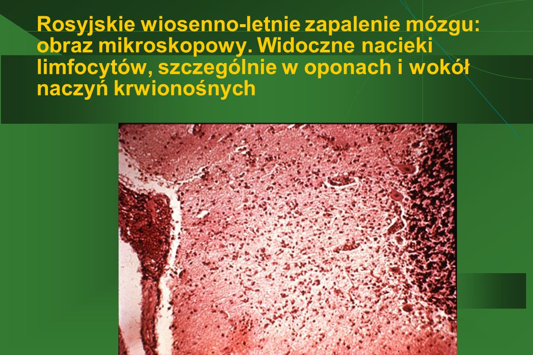 Rosyjskie wiosenno-letnie zapalenie mózgu: obraz mikroskopowy