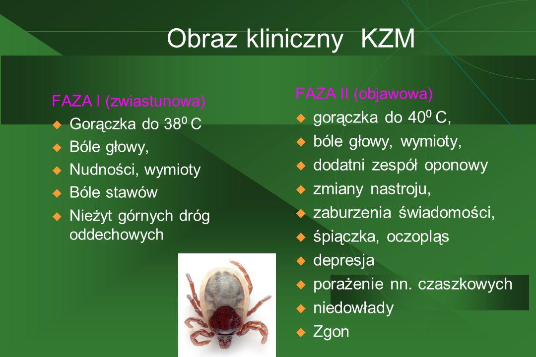 Obraz kliniczny KZM gorączka do 400 C, bóle głowy, wymioty,