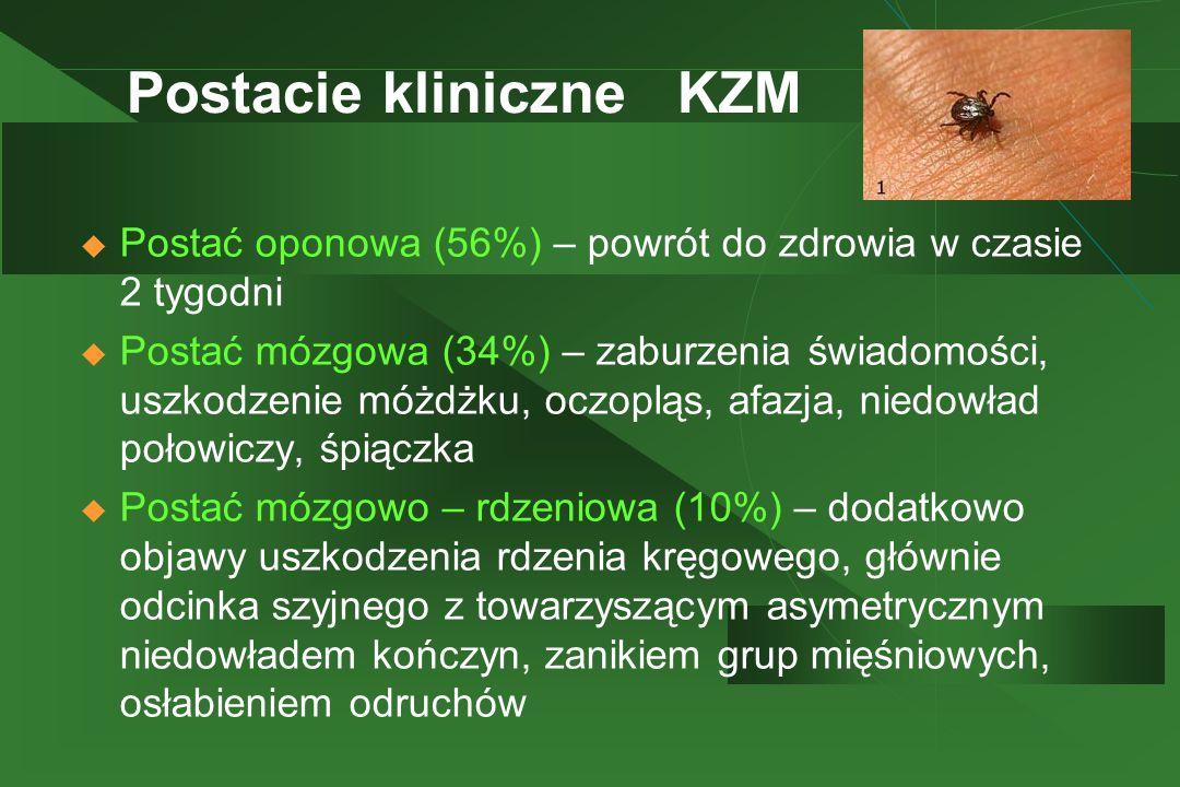 Postacie kliniczne KZM
