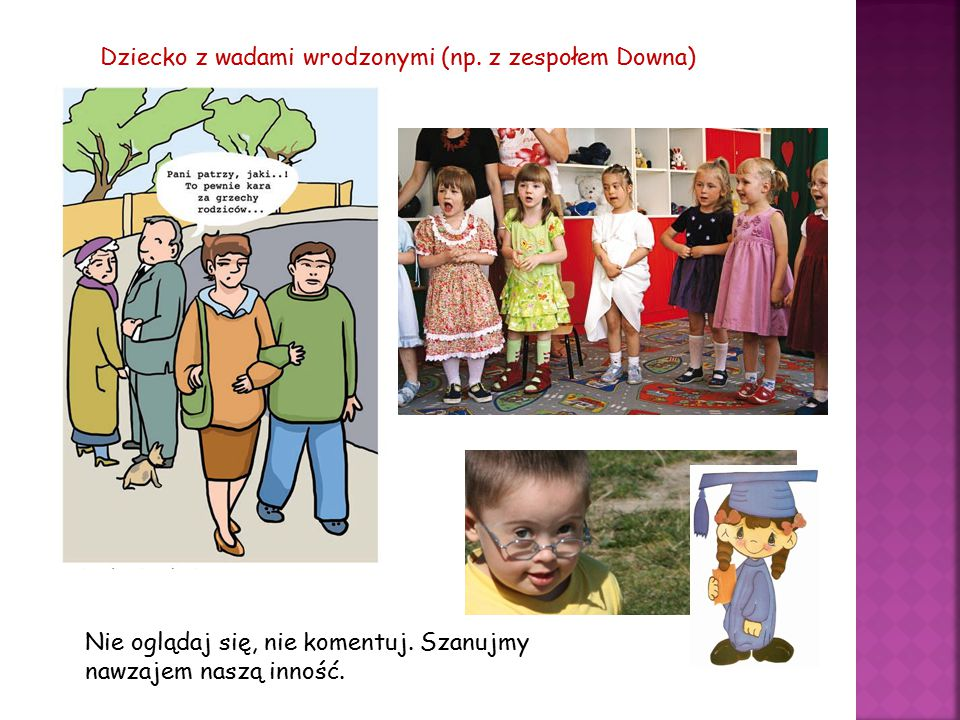 Dziecko z wadami wrodzonymi (np. z zespołem Downa)