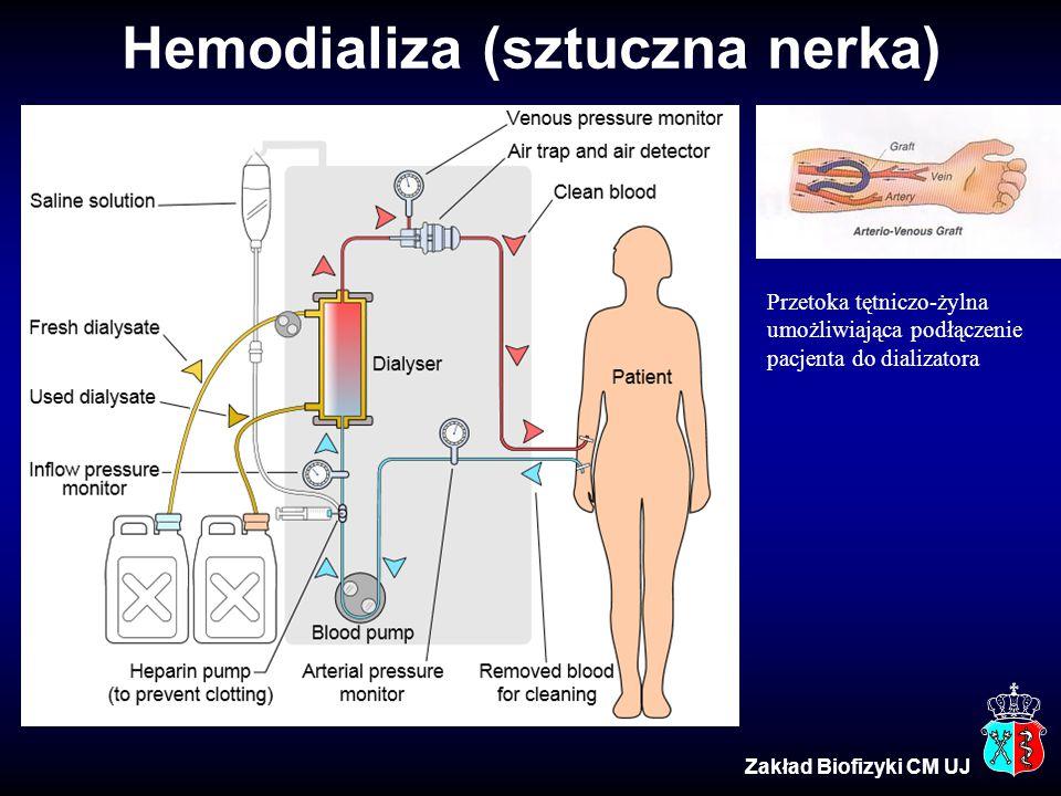 Hemodializa (sztuczna nerka)