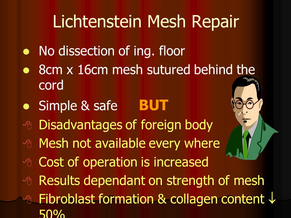 Lichtenstein Mesh Repair