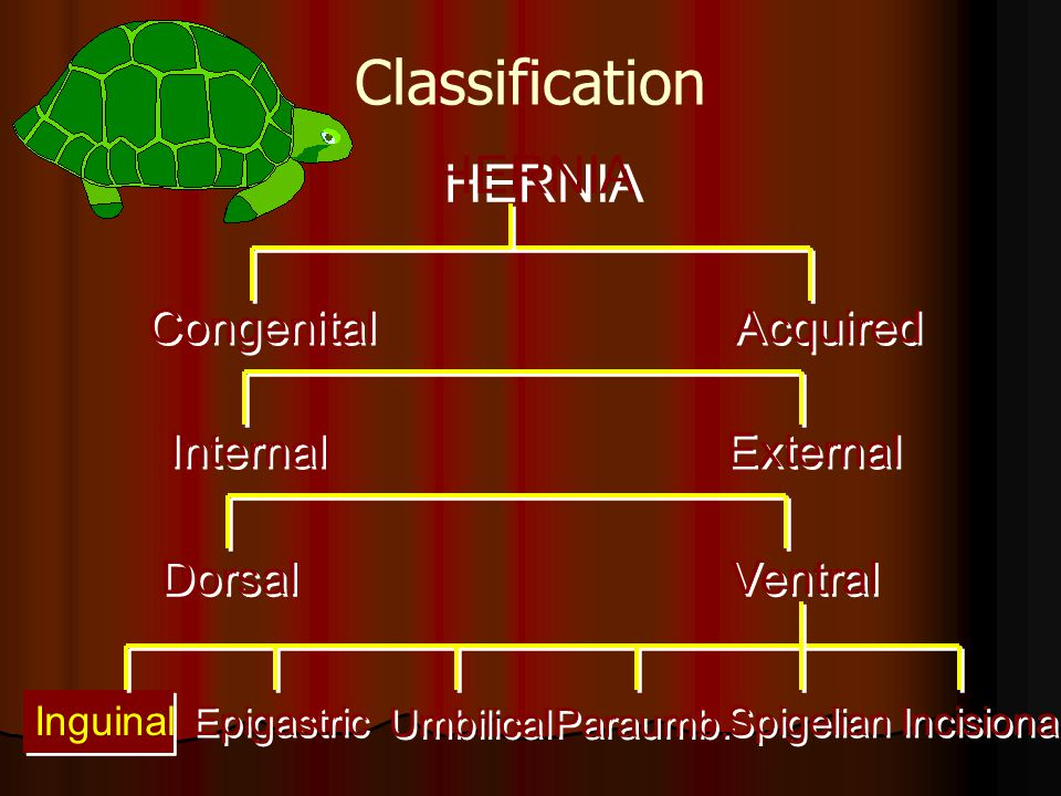Classification HERNIA Congenital Acquired Internal External Dorsal