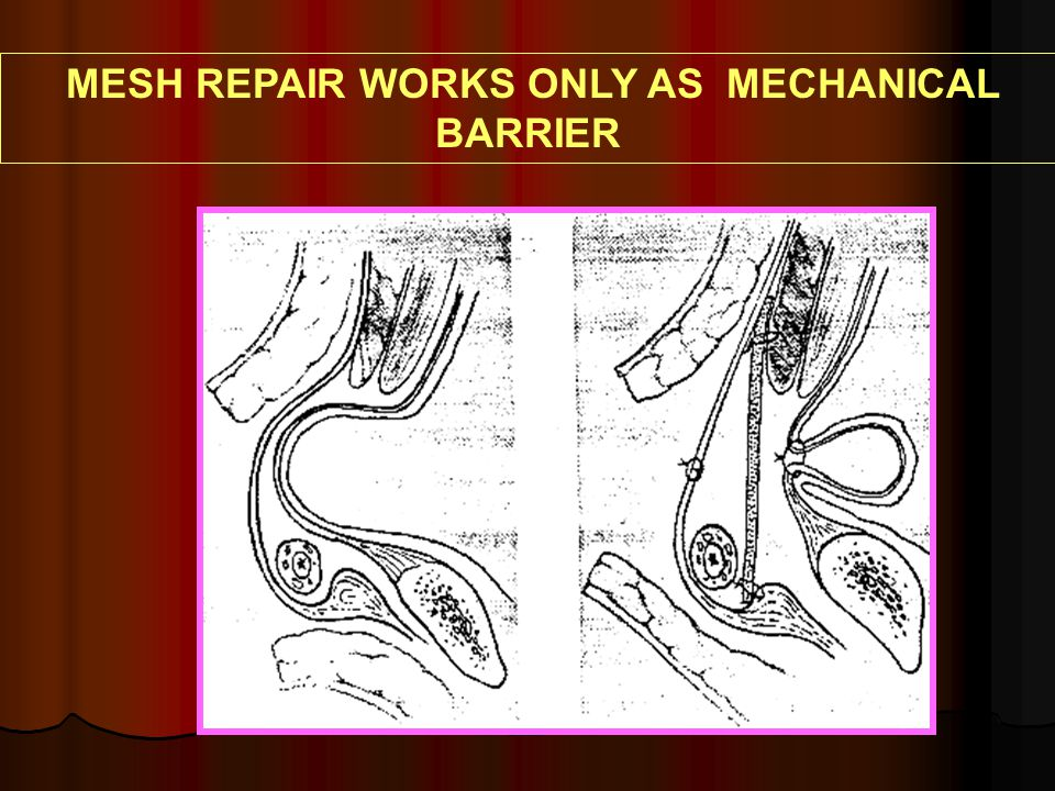 MESH REPAIR WORKS ONLY AS MECHANICAL BARRIER