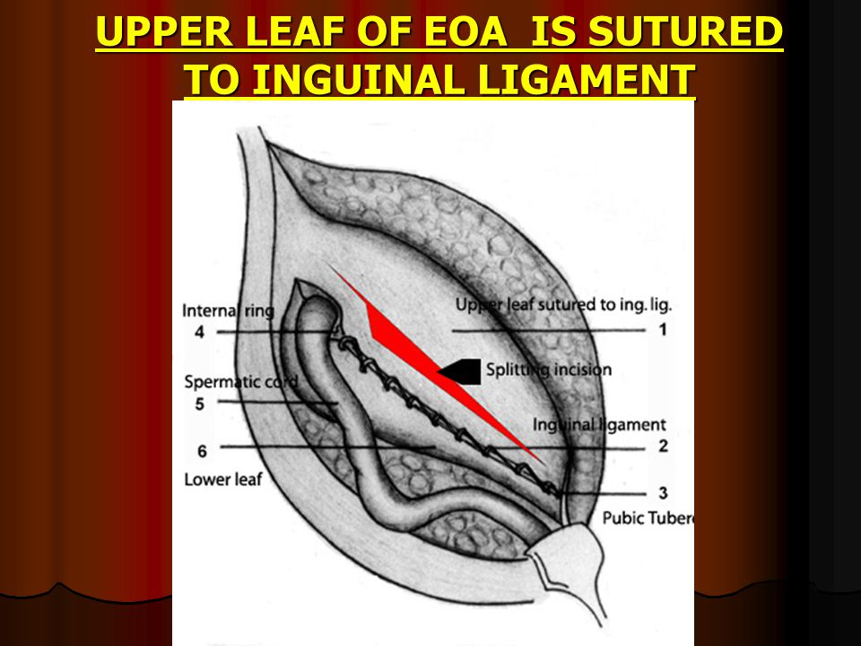 UPPER LEAF OF EOA IS SUTURED TO INGUINAL LIGAMENT