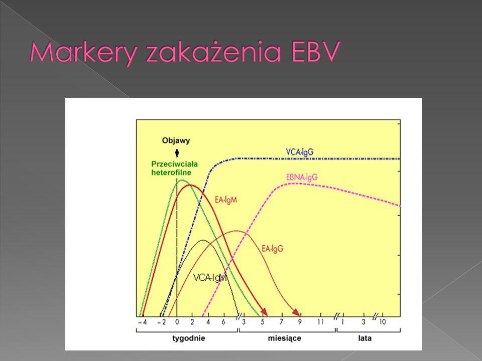Markery zakażenia EBV