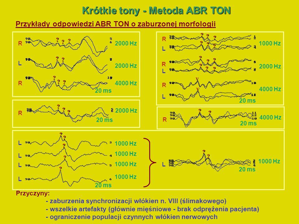 Krótkie tony - Metoda ABR TON