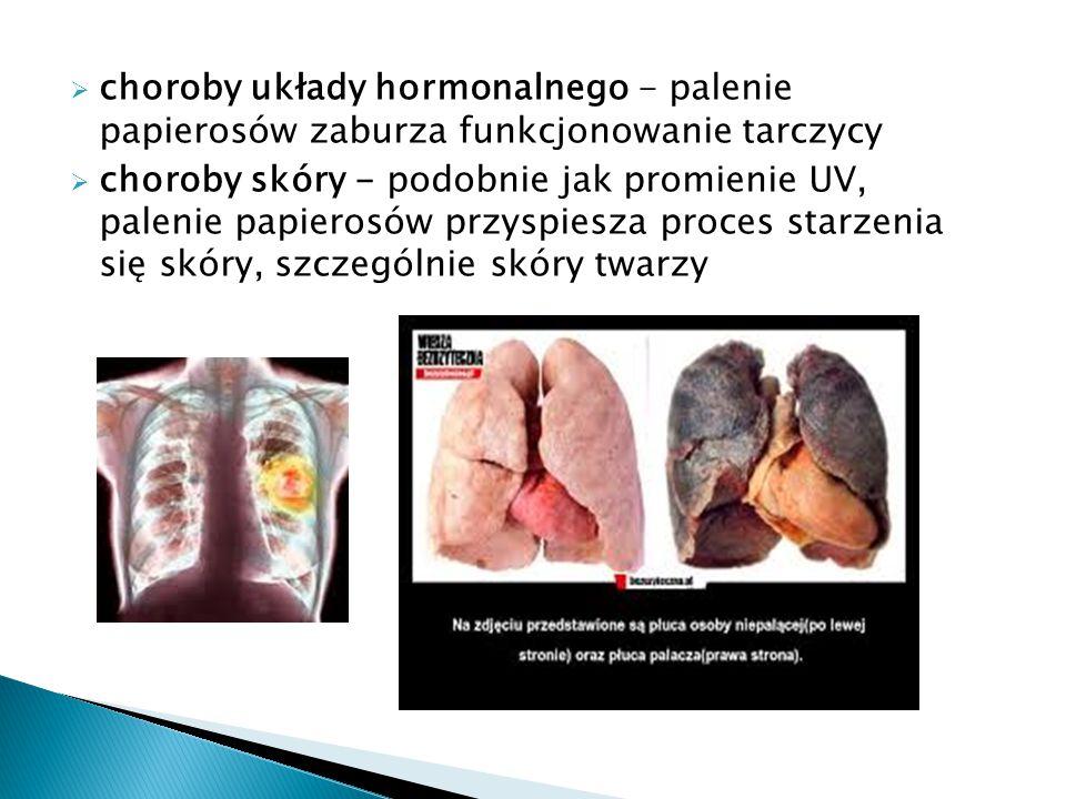 choroby układy hormonalnego - palenie papierosów zaburza funkcjonowanie tarczycy