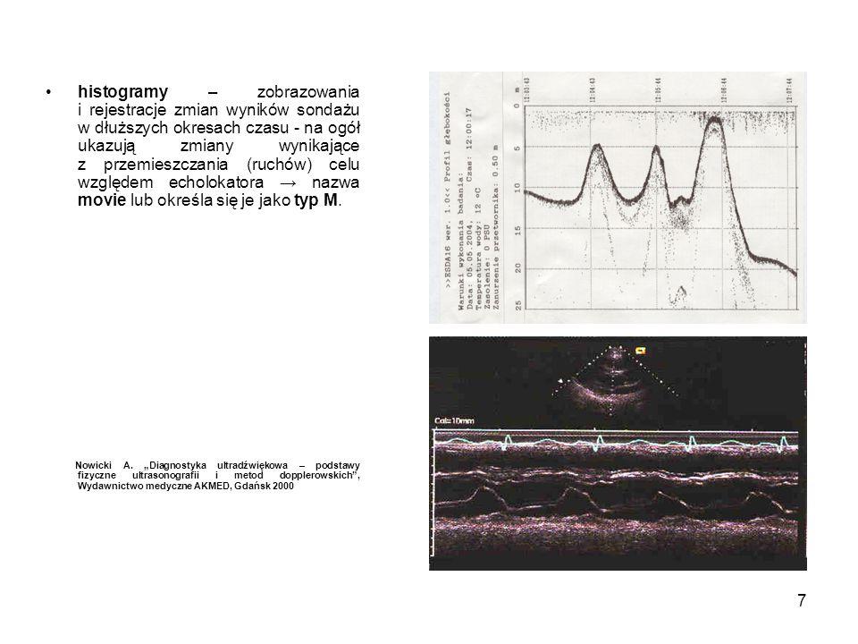 histogramy – zobrazowania i rejestracje zmian wyników sondażu w dłuższych okresach czasu - na ogół ukazują zmiany wynikające z przemieszczania (ruchów) celu względem echolokatora → nazwa movie lub określa się je jako typ M.