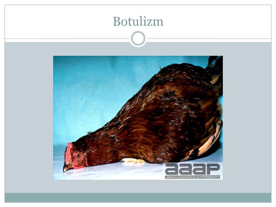 Botulizm