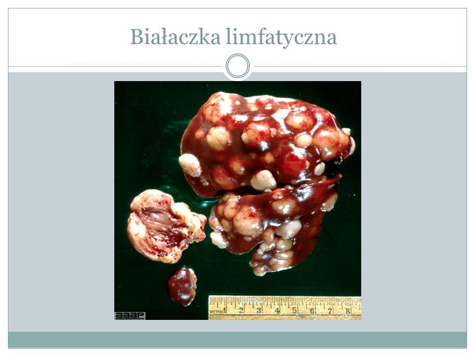 Białaczka limfatyczna