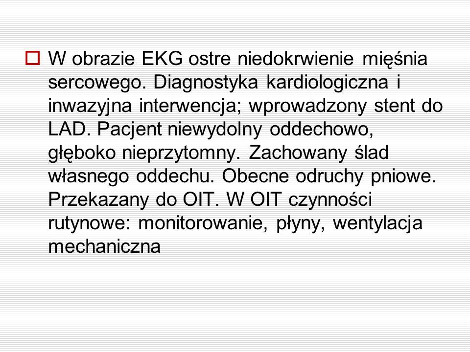 W obrazie EKG ostre niedokrwienie mięśnia sercowego