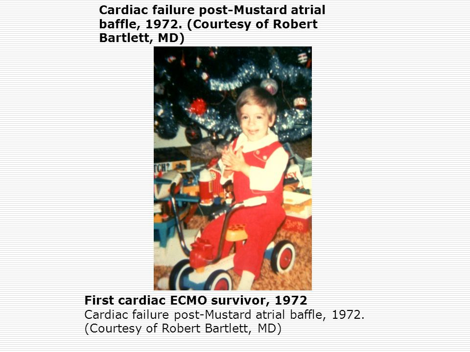 Cardiac failure post-Mustard atrial baffle, 1972