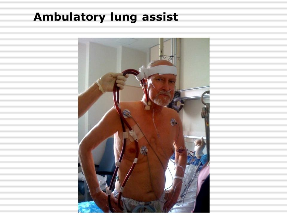 Ambulatory lung assist
