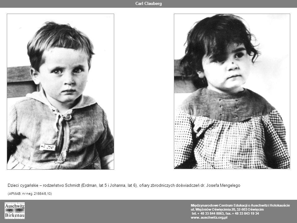 Carl Clauberg Dzieci cygańskie – rodzeństwo Schmidt (Erdman, lat 5 i Johanna, lat 6), ofiary zbrodniczych doświadczeń dr. Josefa Mengelego.