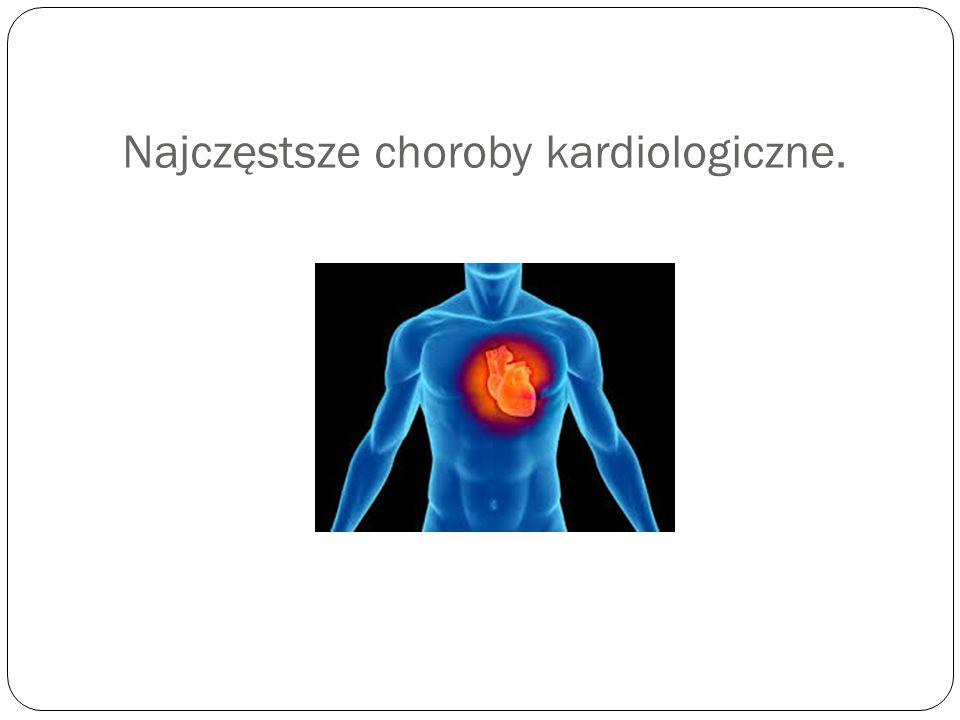 Najczęstsze choroby kardiologiczne.