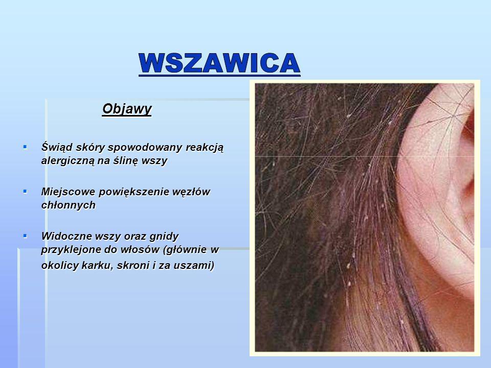 wszawica Objawy. Świąd skóry spowodowany reakcją alergiczną na ślinę wszy. Miejscowe powiększenie węzłów chłonnych.