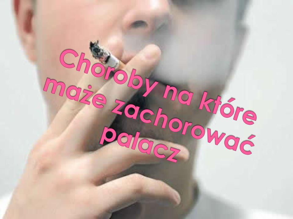 Choroby na które maże zachorować palacz