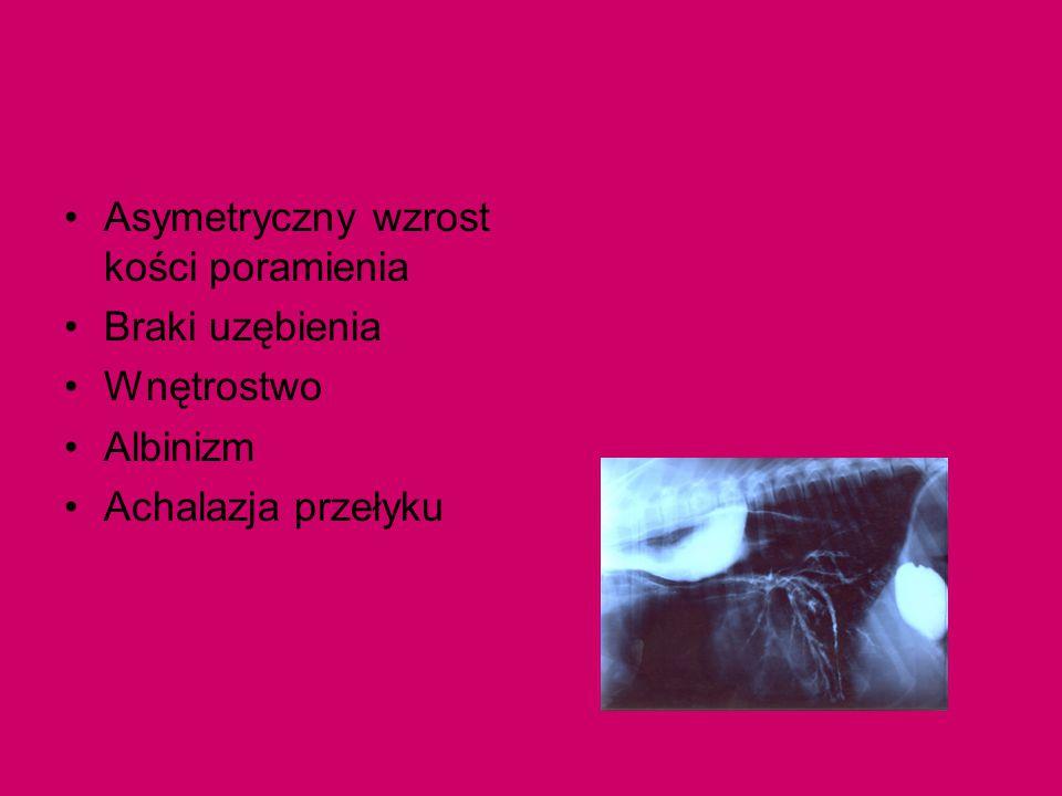 Asymetryczny wzrost kości poramienia