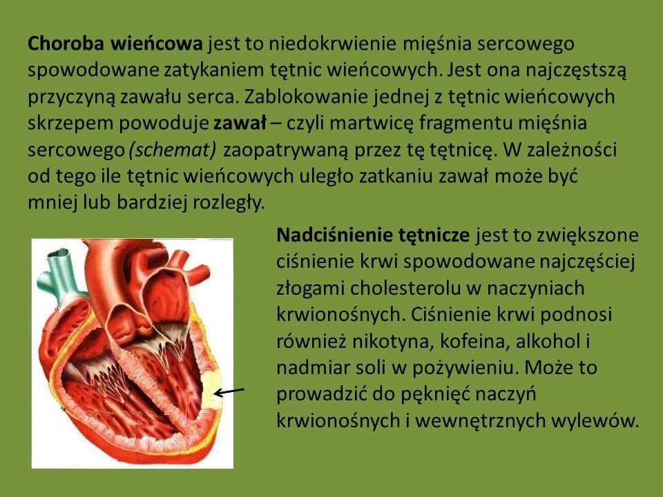 Choroba wieńcowa jest to niedokrwienie mięśnia sercowego spowodowane zatykaniem tętnic wieńcowych. Jest ona najczęstszą przyczyną zawału serca. Zablokowanie jednej z tętnic wieńcowych skrzepem powoduje zawał – czyli martwicę fragmentu mięśnia sercowego (schemat) zaopatrywaną przez tę tętnicę. W zależności od tego ile tętnic wieńcowych uległo zatkaniu zawał może być mniej lub bardziej rozległy.