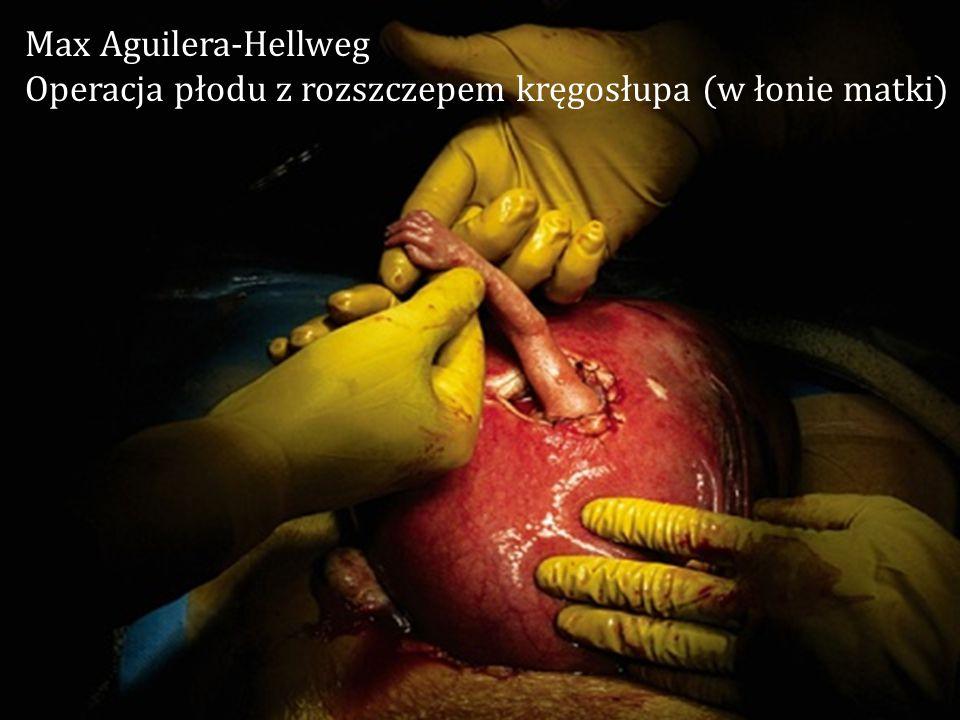 Max Aguilera-Hellweg Operacja płodu z rozszczepem kręgosłupa (w łonie matki)