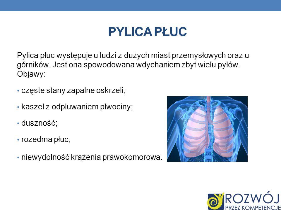 PYLICA PŁUC Pylica płuc występuje u ludzi z dużych miast przemysłowych oraz u górników. Jest ona spowodowana wdychaniem zbyt wielu pyłów. Objawy: