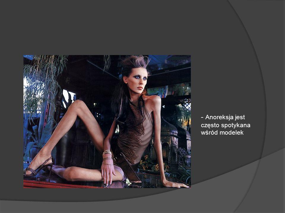 - Anoreksja jest często spotykana wśród modelek