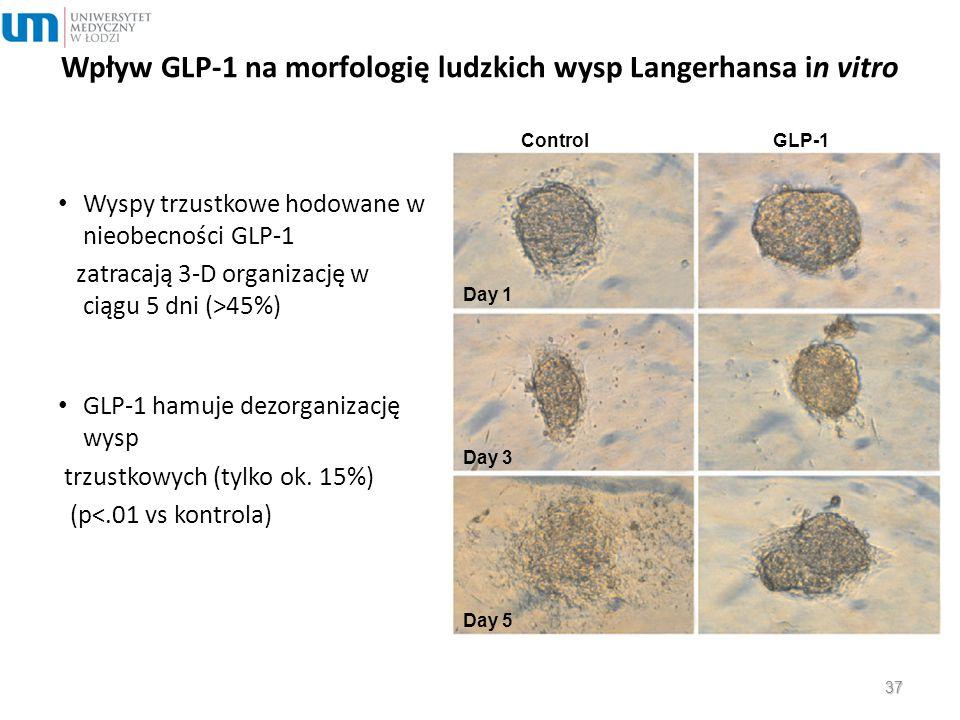 Wpływ GLP-1 na morfologię ludzkich wysp Langerhansa in vitro