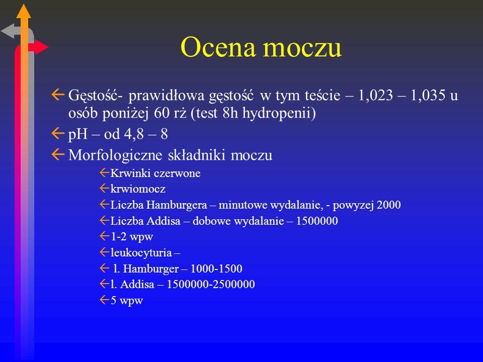 Ocena moczu Gęstość- prawidłowa gęstość w tym teście – 1,023 – 1,035 u osób poniżej 60 rż (test 8h hydropenii)