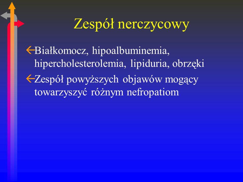Zespół nerczycowy Białkomocz, hipoalbuminemia, hipercholesterolemia, lipiduria, obrzęki.