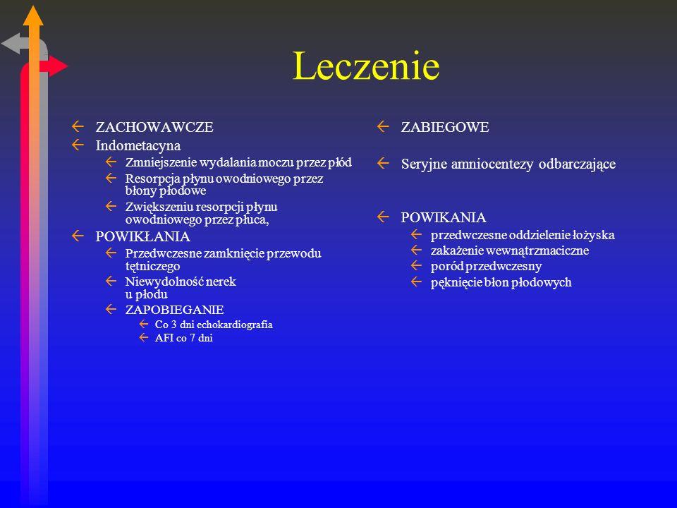 Leczenie ZACHOWAWCZE Indometacyna POWIKŁANIA ZABIEGOWE