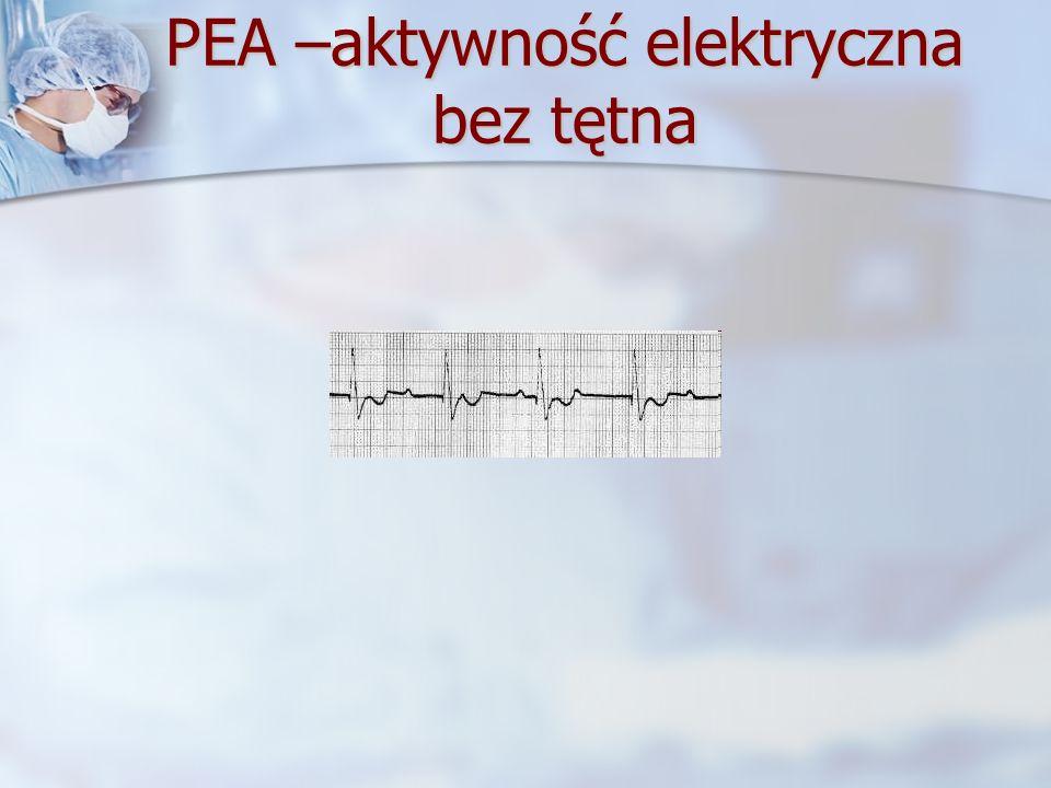 PEA –aktywność elektryczna bez tętna