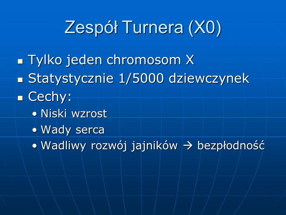 Zespół Turnera (X0) Tylko jeden chromosom X