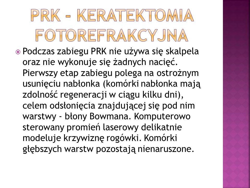 PRK - keratektomia fotorefrakcyjna