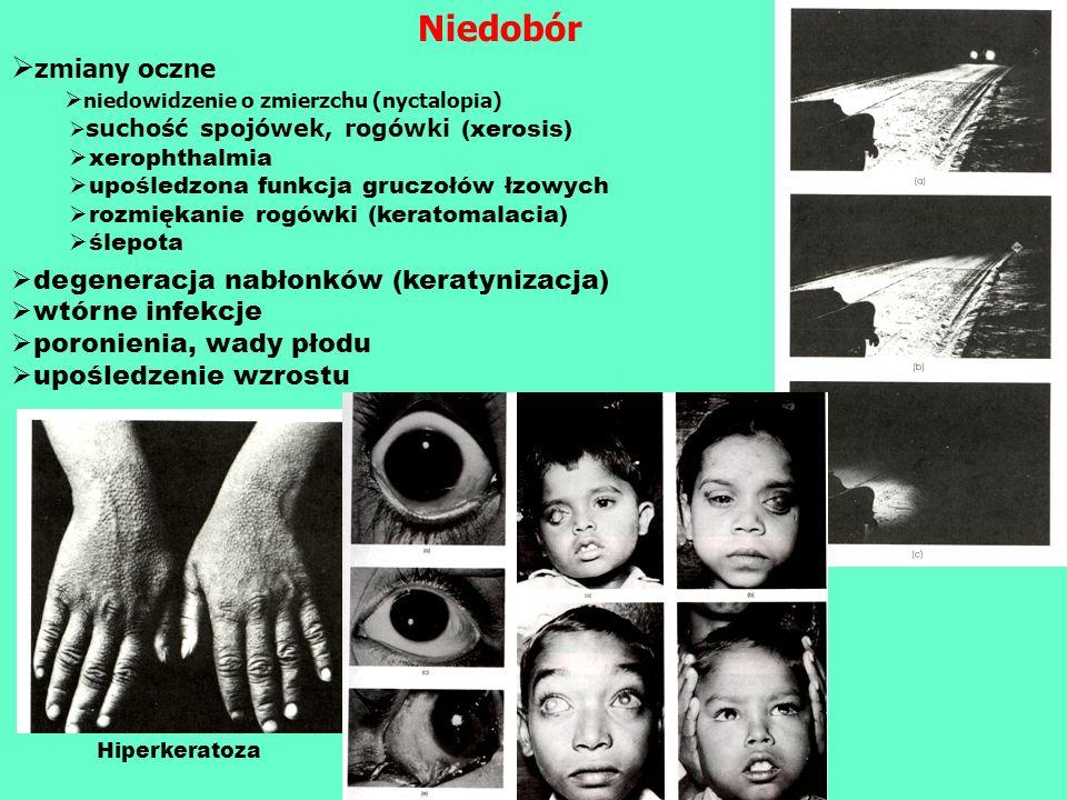 Niedobór zmiany oczne degeneracja nabłonków (keratynizacja)