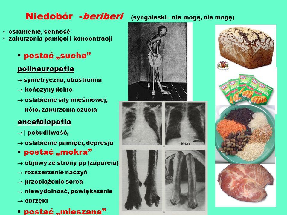Niedobór -beriberi (syngaleski – nie mogę, nie mogę)