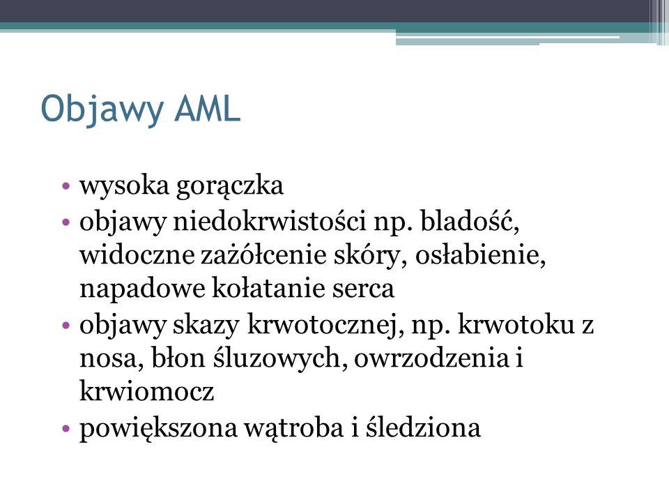 Objawy AML wysoka gorączka