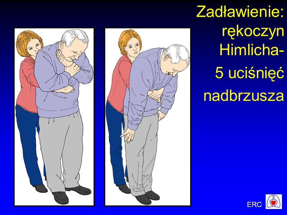 Zadławienie: rękoczyn Himlicha- 5 uciśnięć nadbrzusza