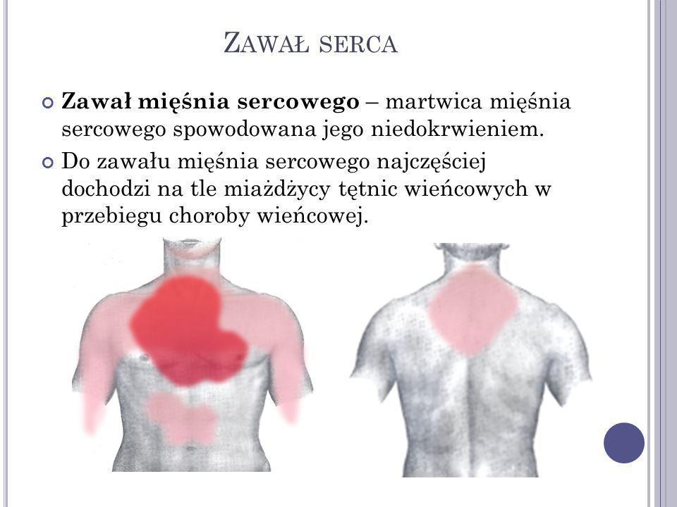 Zawał serca Zawał mięśnia sercowego – martwica mięśnia sercowego spowodowana jego niedokrwieniem.