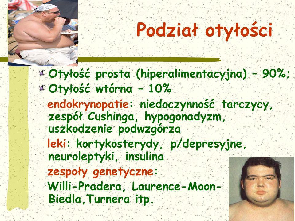 Podział otyłości Otyłość prosta (hiperalimentacyjna) – 90%;