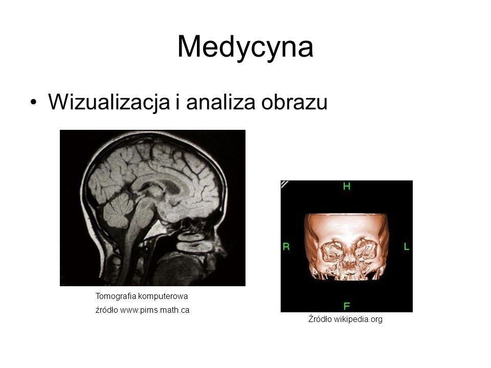 Medycyna Wizualizacja i analiza obrazu Tomografia komputerowa