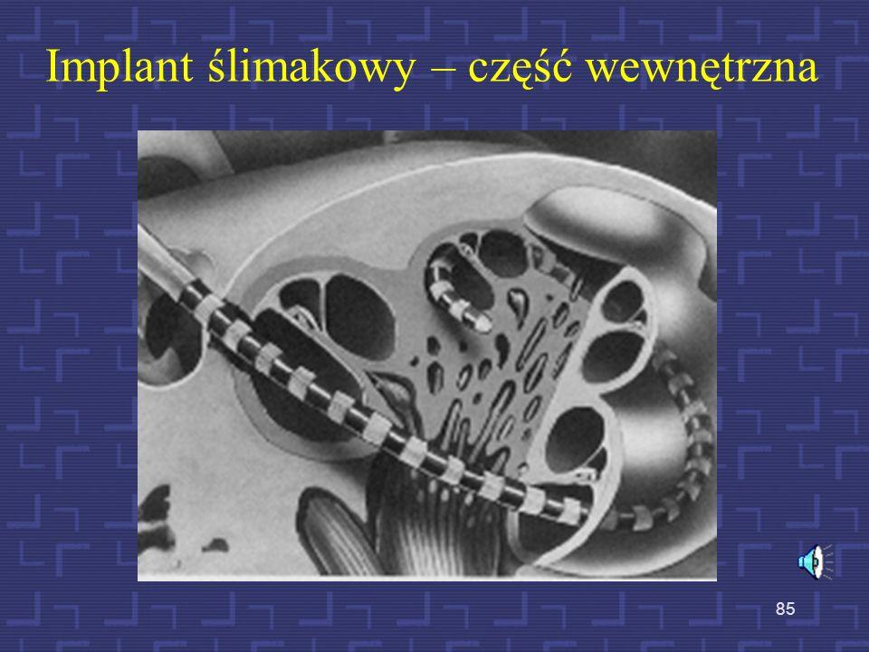 Implant ślimakowy – część wewnętrzna