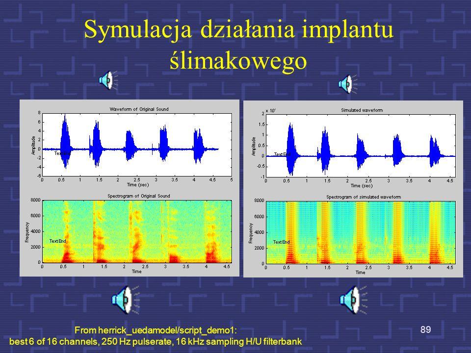 Symulacja działania implantu ślimakowego