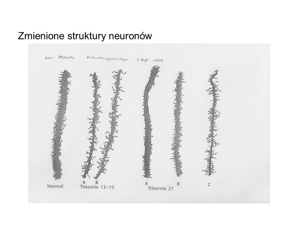 Zmienione struktury neuronów